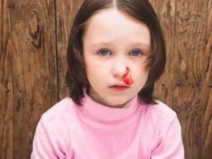 儿童宝宝流鼻血怎么办?4步正确护理方法